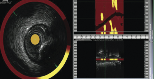Figure 2. Example of the view from a LipiScan intravascular ultrasound (IVUS)/near infrared spectroscopy (NIRS) catheter. Yellow indicates the presence of a lipid core plaque