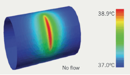 Figure 3. Intravascular thermography determining localisation of the 'hot' plaque
