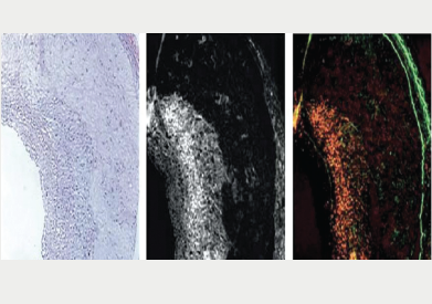 Figure 5. Correlative histopathology and fluorescence microscopy of atheroma sections labelled with a near infrared fluorescence (NIRF) agent