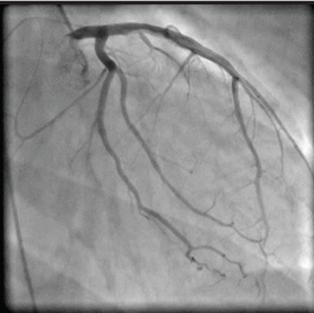 Coronary Artery Dissection Secondary To Cocaine Abuse