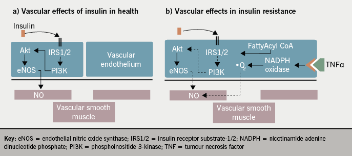influence of dietary state and insulin People with diabetes represent a large subsection of society and there will be range of variety in terms of dietary  influence on blood  insulin sensitivity and.