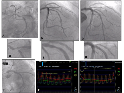 Figure 6. Angiographic vs. functional evaluation of coronary stenosis. Clinical case 2.