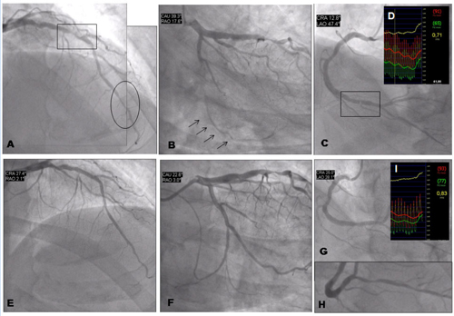 Figure 7. Revascularisation for silent ischaemia. Clinical case 3.