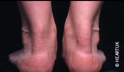 Tendon Xanthoma How can we improve cli...
