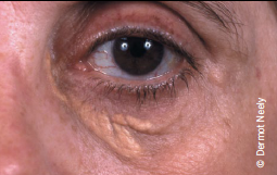 Figure 2. Xanthelasma represent areas of lipid-laden macrophages. The presence of these is predictive of an increased risk of coronary heart disease, atherosclerosis and mortality