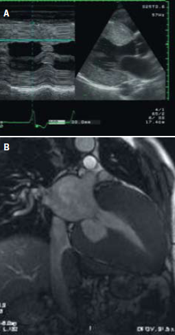 Figure 1. A 47-year old asymptomatic male, with a one-year history of hypertension, creatinine 175 μmol/L, proteinuria on urinalysis, electrocardiogram (ECG) severe left ventricular hypertrophy. A. Echocardiography shows marked left ventricular hypertrophy with no evidence of outflow obstruction or systolic anterior motion of the mitral valve. B. Cardiac magnetic resonance imaging (MRI) in the same patient. Renal biopsy was diagnostic