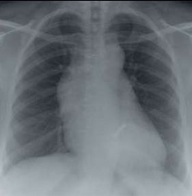 Figure 1. Chest X-ray showing widened mediastinum