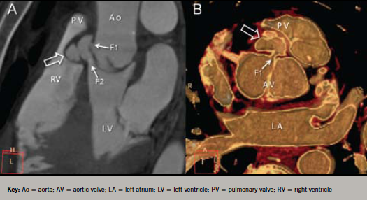 Figure 2. A: Cardiac computed tomography (CT) multi-planar reconstruction. The abscess cavity (hollow arrow) communicates with the aortic root (F1) and left ventricular outflow tract (F2) to form a fistula. The abscess presses forward into the right ventricular outflow tract displacing the pulmonary valve (PV) superiorly. B: Cardiac CT blood pool inversion image. The bicuspid aortic valve (AV) is clearly seen with a fistulous connection (F1) to the abscess cavity (hollow arrow)