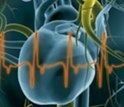 Angina module 6: secondary prevention and treatment