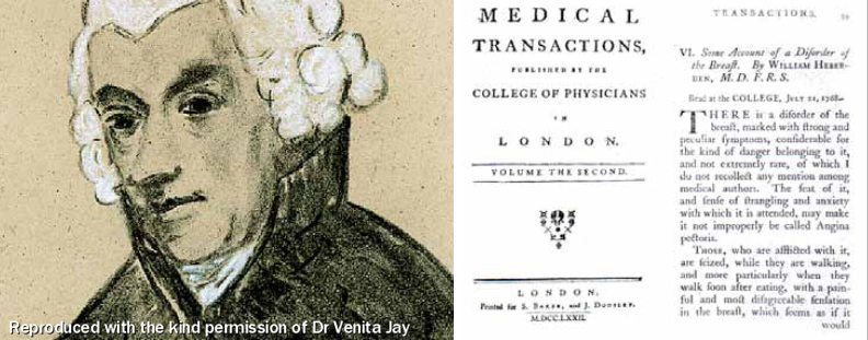 Figure 1. William Heberden who first described angina in 1768