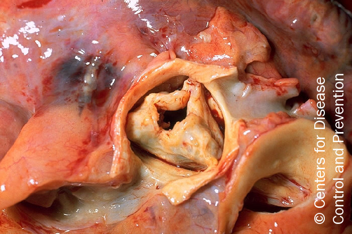 Figure 2. Gross pathology of rheumatic heart disease: aortic stenosis. Aorta has been removed to show thickened, fused aortic valve leaflets and opened coronary arteries from above. Autopsy
