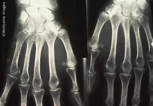 Figure 11. Marfan syndrome, as well as affecting connective tissue, typically results in arachnodactyly of the fingers. Wellcome Photo Library