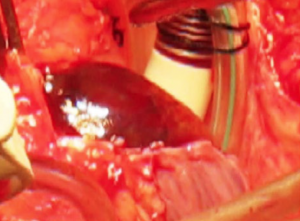 Figure 5. Intraoperative picture showing a large dusky, purple mass filling the entire right atrium