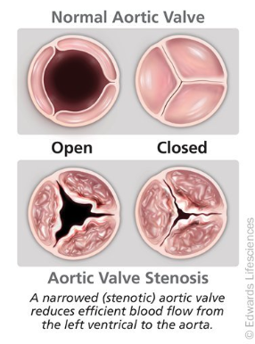 Figure 1. Normal and stenotic valves