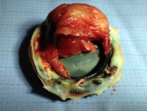 Figure 4. Introperative image showing thrombus overlying a mechanical mitral valve. Anticoagulation was stopped for multiple orthopaedic procedures