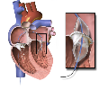 Heart valve disease module 9: surgery for heart valve disease