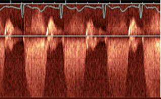 heart-valve-disease