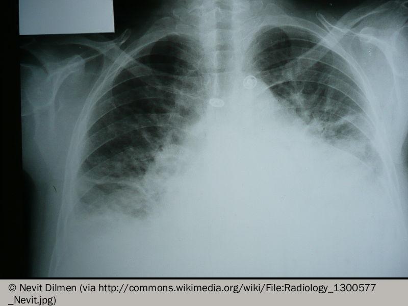 800px-Radiology_1300577_Nevit