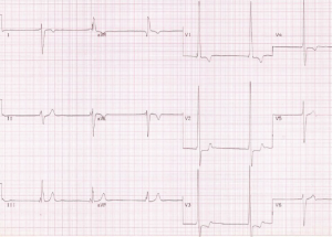 Figure 1b. Electrocardiogram (ECG) from a patient with transposition of great arteries (D-TGA) treated by the Mustard procedure. It shows junctional bradycardia, right axis deviation, and right ventricular hypertrophy