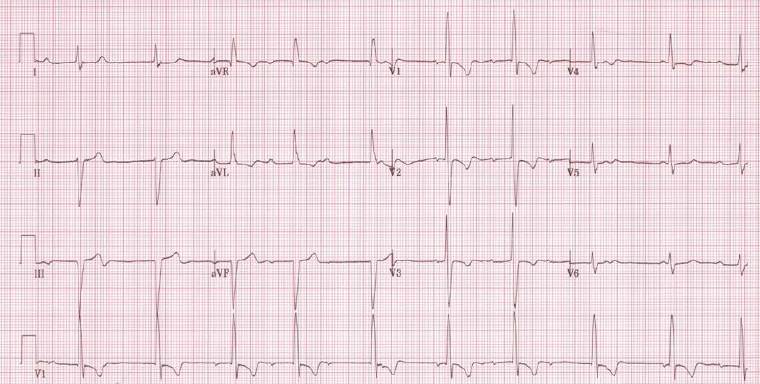 Figure 1e. Complete heart block in a patient after a Mustard procedure