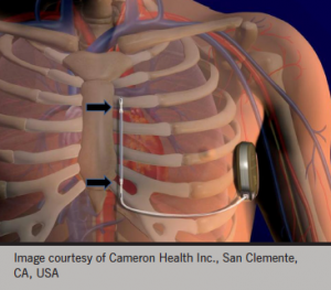 Figure 3a. Schematic representation of the subcutaneous implantable cardioverter defibrillator (ICD) system manufactured by Cameron Health. It is a 9 Fr lead with two sense electrodes (arrows). Multiple sense vectors are automatically analysed to identify the most robust cardiac signal. The maximum shock energy is 80 J delivered in a biphasic fashion