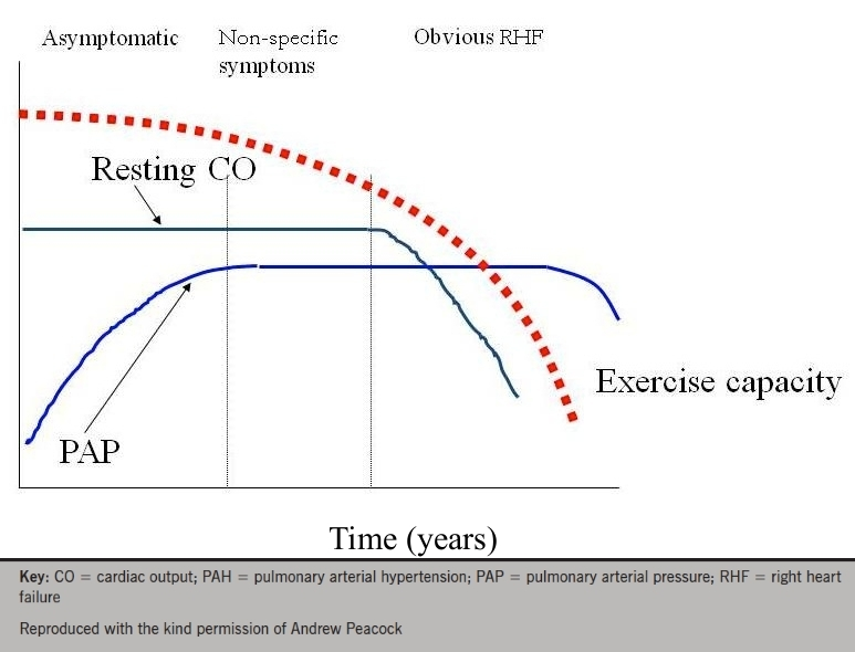 Figure 3. Graph showing the delay between the onset of elevated pulmonary pressures and the onset of symptoms in PAH