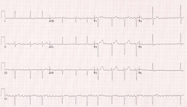 Figure 16. ECG showing atrial fibrillation (click to enlarge)