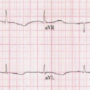 Torsades de pointes cardiac arrest associated with severe hypothyroidism