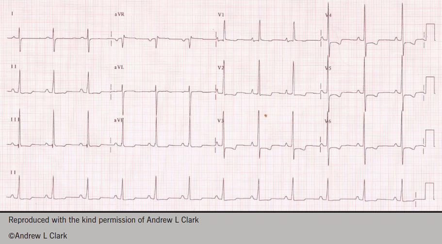 Figure 1. Electrocardiogram of a young woman subsequently diagnosed with pulmonary arterial hypertension