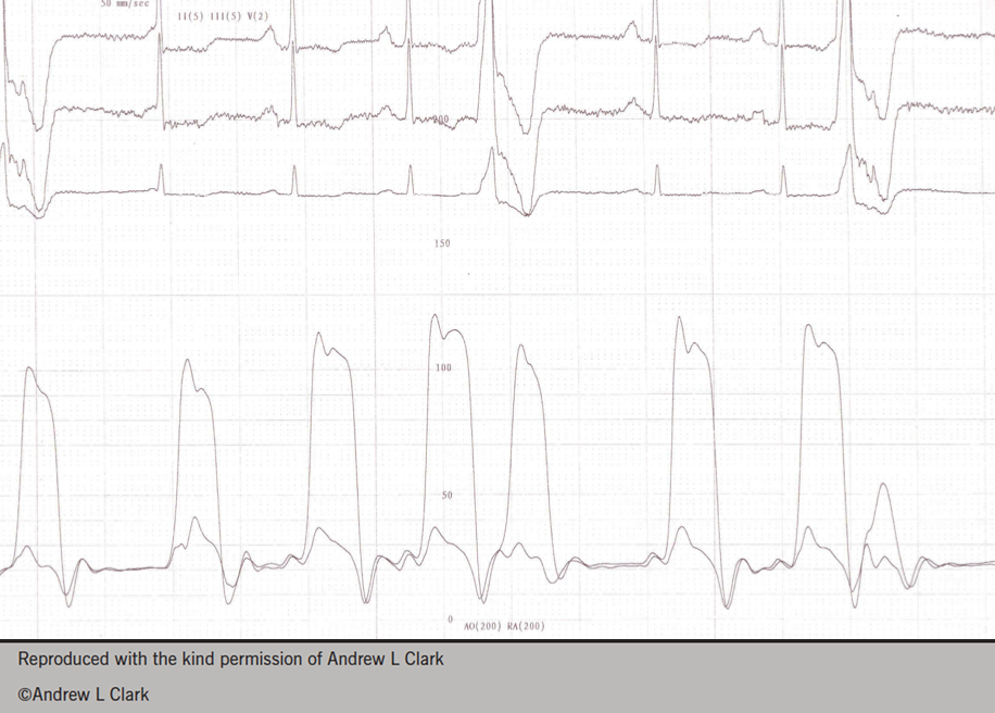 Figure 2. Right and left coronary catherisation data from a young woman showing pericardial constriction