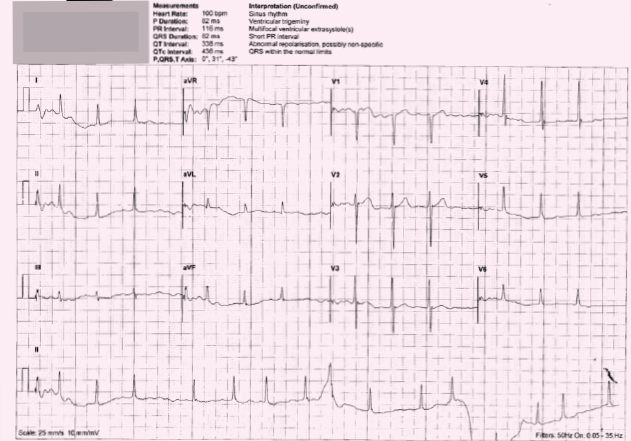 ECG 2. Is this machine interpretation 'sinus rhythm, ventricular trigeminy, multi-focalventricular extrasystole(s), short PR interval, abnormal repolarisation, possibly nonspecific, QRS within normal limits' correct?