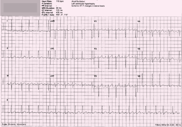 ECG 3. Is this machine interpretation 'atrial fibrillation, left ventricular hypertrophy, ischaemic ST–T changes in lateral leads' correct?