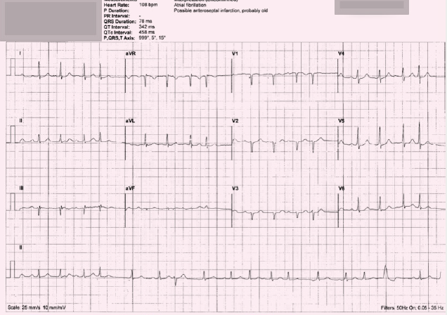 ECG 4. Is this machine interpretation 'atrial fibrillation, possible anteroseptal infarction, probably old' correct?