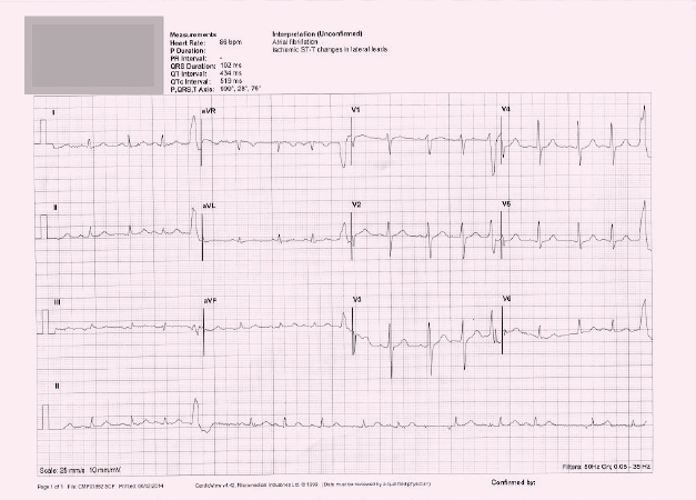 ECG 5. Is this machine interpretation 'atrial fibrillation, ischaemic ST–T changes in lateral leads' correct?