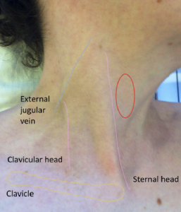Figure 1. External anatomical landmarks (lightly traced in colour). The red circle shows the region where the internal jugular vein will be observed when distended