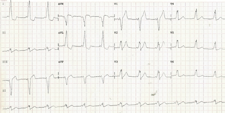 Figure 1. A 12-lead electrocardiogram (ECG) demonstrating type B Wolff-Parkinson-White syndrome