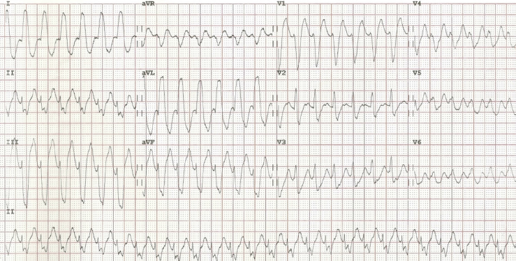 Figure 2. The admission 12-lead ECG demonstrating a broad complex tachycardia