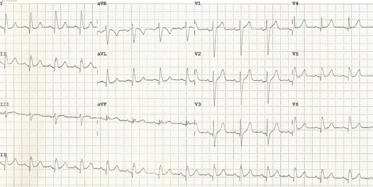 Figure 3. Post-cardioversion 12-lead ECG (no evidence of pre-excitation)