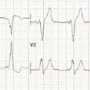 Mahaim fibre tachycardia in a patient with type B Wolff-Parkinson-White syndrome