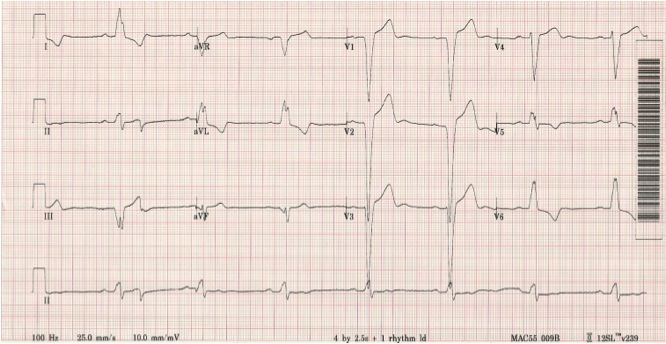 Figure 1. 12-lead electrocardiogram of left bundle branch block (LBBB)