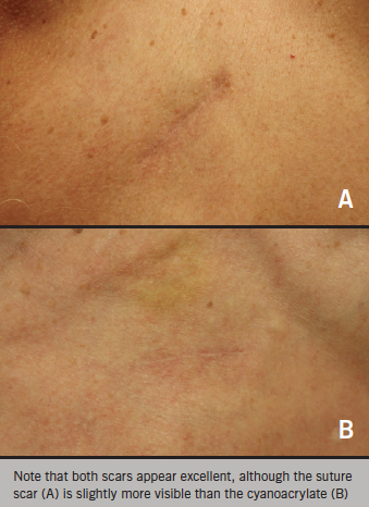 Figure 2. Comparison of scars at 12 weeks