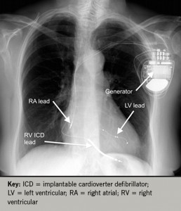 Figure 6. PA chest X-ray following successful CRT-D implantation