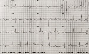 Figure 1. The electrocardiogram (ECG)showing deep inferolateral T-wave inversion