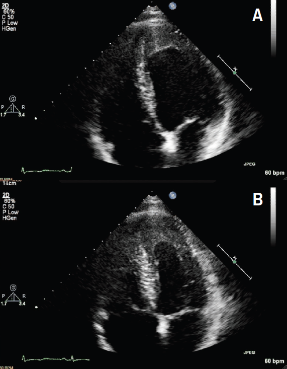 Endomyocardial fibrosis in hypereosinophilic syndrome the british