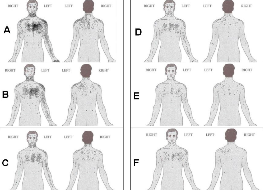 Figure 1. Schematics showing the location of discomfort for the South Asian (A) and Caucasian (B) cohorts