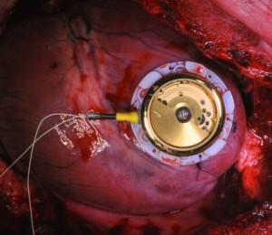 The energy harvesting device is sutured directly onto the myocardium