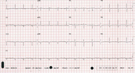 Figure 1a. 12-lead electrocardiogram (ECG) acquired on admission to Accident and Emergency (A&E) showing sinus tachycardia and no acute changes