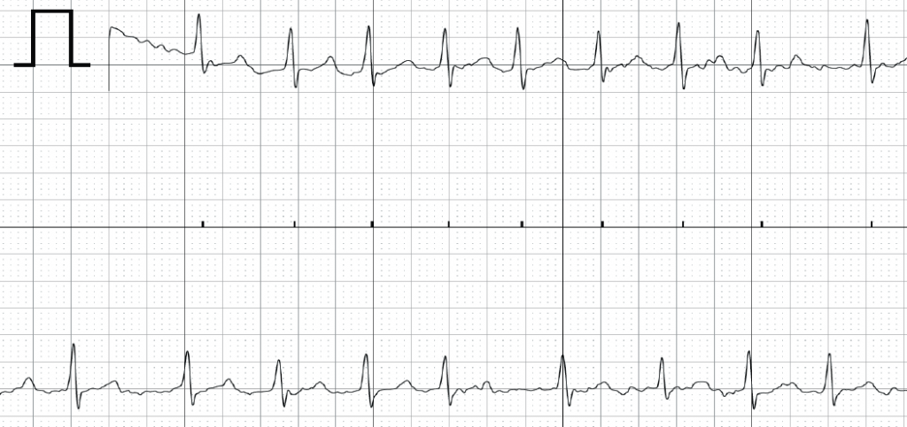 Figure 1. AliveCor electrocardiogram (ECG) demonstrating atrial fibrillation