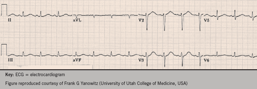 Figure 1. The ECG you obtain from the case