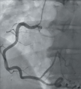 Figure 2. Left anterior oblique (LAO)view, showing the right coronary artery(RCA) arising from right coronary cusp